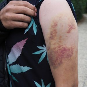 One respondent's injuries after being struck 20 times by a baton