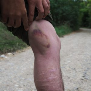 One respondent's injuries after being struck once by a baton. The photo was taken one week after the injuries were sustained.