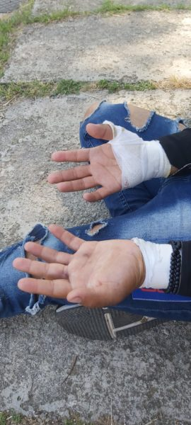 Showcasing the respondent's injuries
