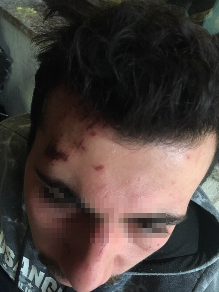 injury from baton beating on forehead